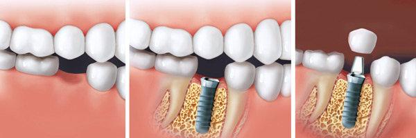 Zahnarzt Dr. Homann Bocholt - Implantate