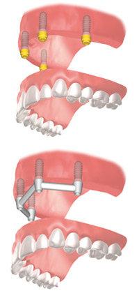 befestigungvollprothese