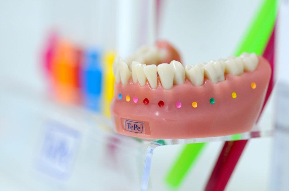 Zahnarzt Dr. Homann Bocholt - Paradontologie